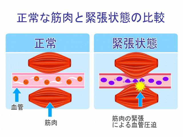 筋肉の緊張 血流圧迫